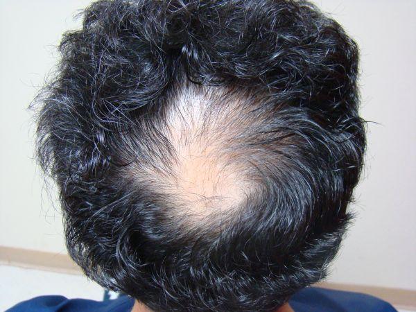 Men Bald Treatment San Francisco San Jose Hair Transplant