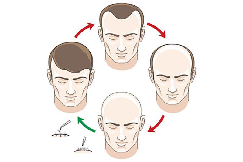 Los Gatos hair transplant