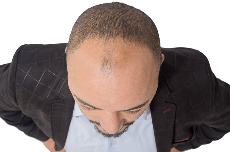 Men hair loss treatment. Hair transplant surgery.