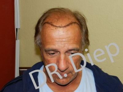 1-before-hairtransplant-male.jpg