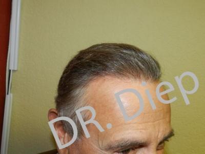 2-after-hairtransplant-male.jpg