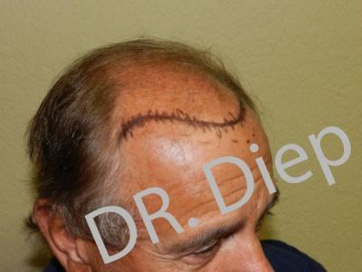2-before-hairtransplant-male.jpg