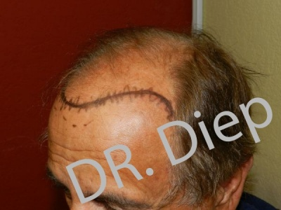 3-before-hairtransplant-male.jpg