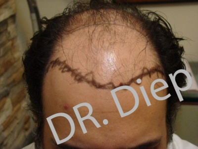 5-before-hairtransplant-male.jpg