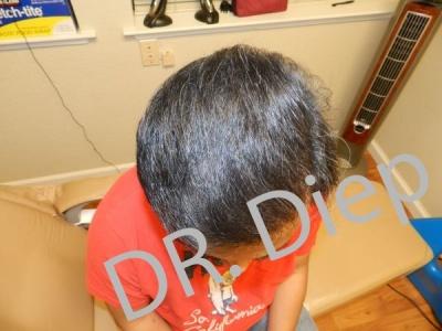 9-after-hairtransplant-male.jpg
