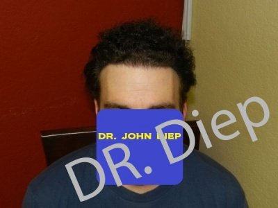 10-after-hairtransplant-male.jpg