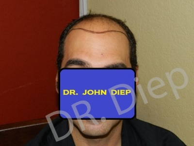 14-before-hairtransplant-male.jpg