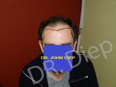 15-before-hairtransplant-male.jpg