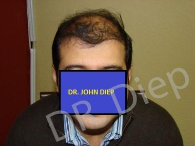 16-before-hairtransplant-male.jpg