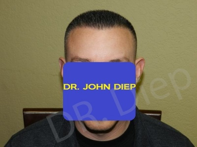 1-fue-hair-transplant-after.jpg
