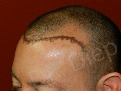 4-fue-hair-transplant-before.jpg