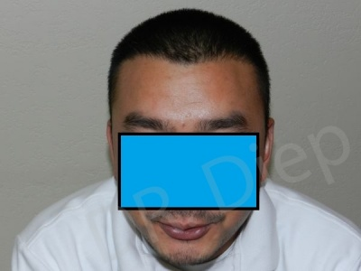 11-fue-hair-transplant-after.jpg