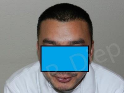 11-fue-hair-transplant-after.jpg
