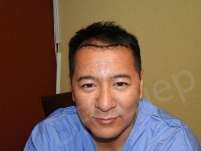 15-fue-hair-transplant-before.jpg
