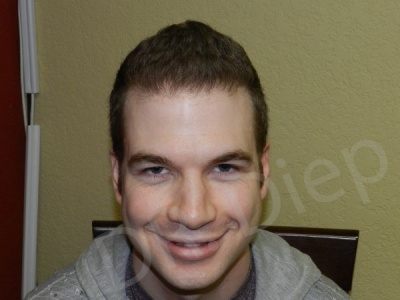 16-fue-hair-transplant-after.jpg
