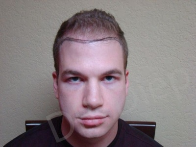 16-fue-hair-transplant-before.jpg