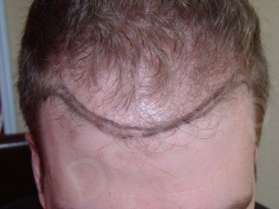 17-fue-hair-transplant-before.jpg