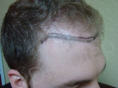 18-fue-hair-transplant-before.jpg