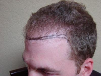19-fue-hair-transplant-before.jpg