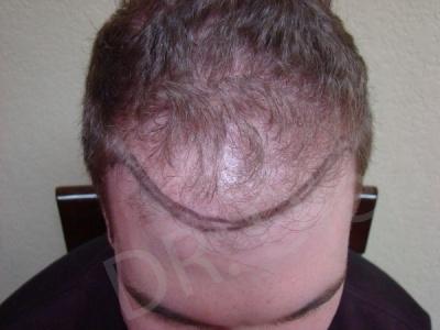 20-fue-hair-transplant-before.jpg