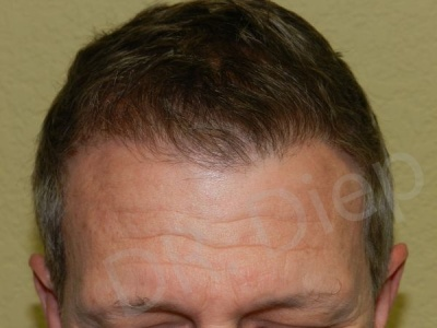 22-fue-hair-transplant-after.jpg