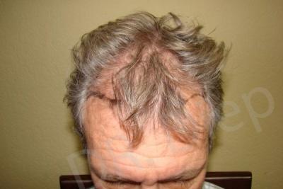 22-fue-hair-transplant-before.jpg