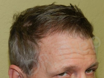23-fue-hair-transplant-after.jpg