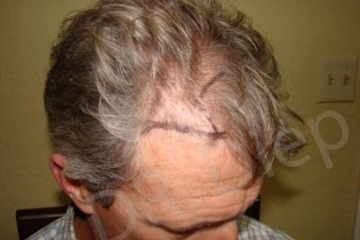 23-fue-hair-transplant-before.jpg