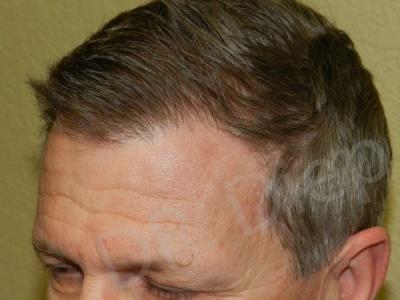 24-fue-hair-transplant-after.jpg