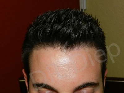 28-fue-hair-transplant-after.jpg