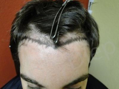 28-fue-hair-transplant-before.jpg