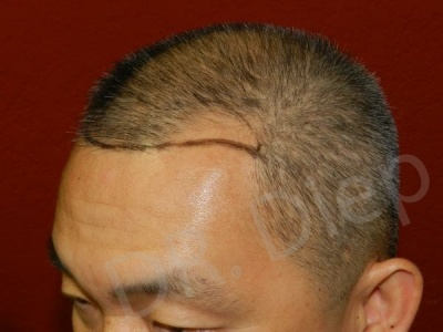6-receding-frontal-hair-loss-before.jpg