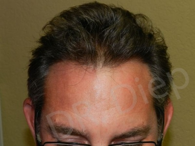 9-receding-frontal-hair-loss-after.jpg