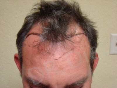 9-receding-frontal-hair-loss-before.jpg