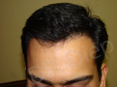 12-receding-frontal-hair-loss-after.jpg