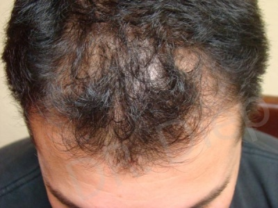 18-receding-frontal-hair-loss-before.jpg