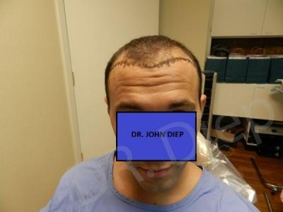 2-receding-hairline-before.jpg