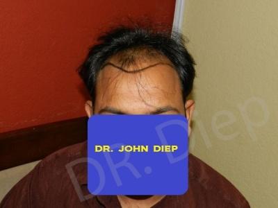 3-receding-hairline-before.jpg