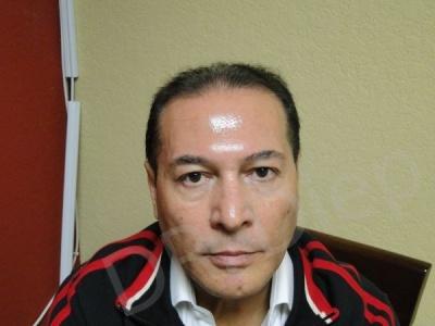 5-receding-hairline-before.jpg