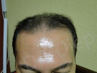 6-receding-hairline-before.jpg