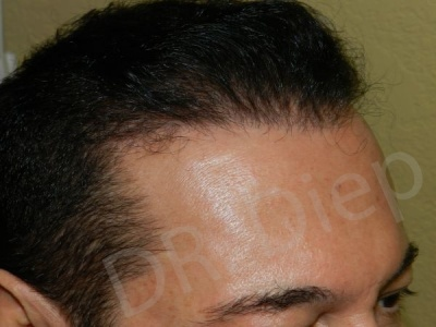 7-receding-hairline-after.jpg
