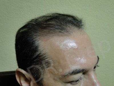 7-receding-hairline-before.jpg