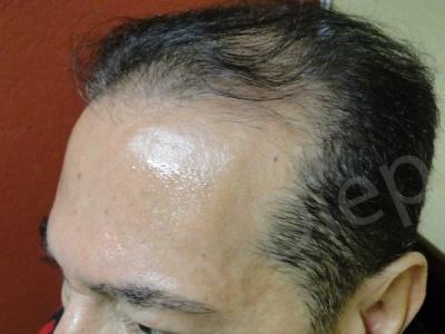 8-receding-hairline-before.jpg