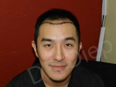 9-receding-hairline-before.jpg