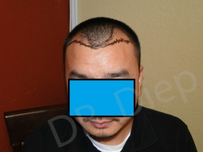 11-receding-hairline-before.jpg