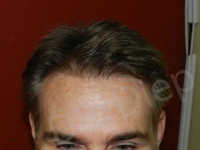 15-receding-hairline-after.jpg