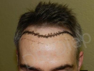 15-receding-hairline-before.jpg