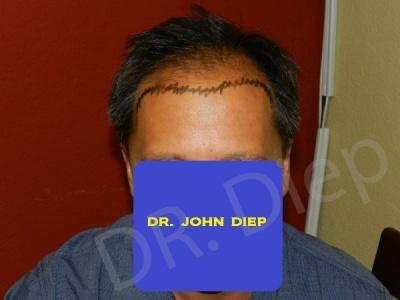 16-receding-hairline-before.jpg