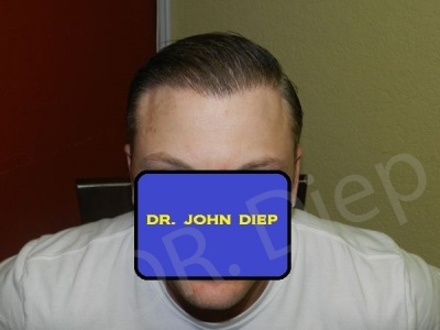 17-receding-hairline-after.jpg