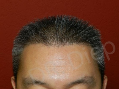 18-receding-hairline-after.jpg